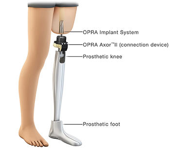 Osseointegrated Prostheses For The Rehabilitation Of Amputees Opra Implant System For Amputees