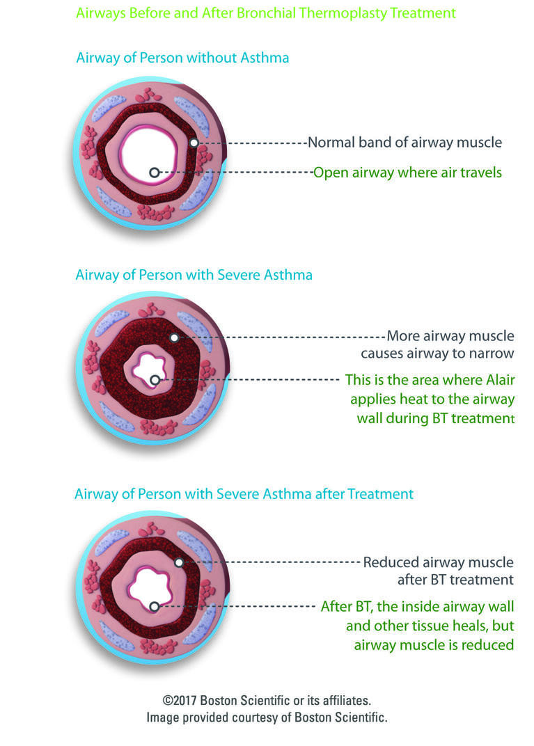 Airways before and after bronchial thermoplasty treatment (Photo: Boston Scientific)