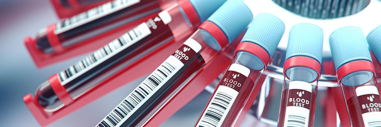 Blood Tubes, Labs