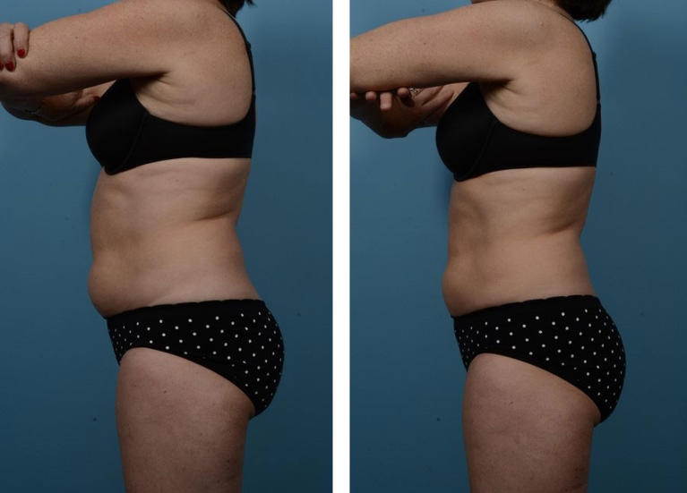 Coolsculpting Fat Removal Abdomen Before and After