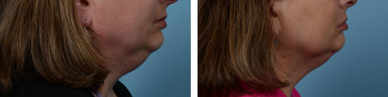 Coolsculpting Fat Removal Chin Before and After
