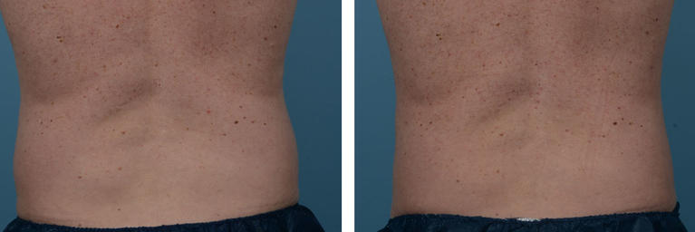 Coolsculpting Fat Removal Love Handles Before and After