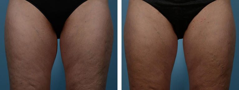 Coolsculpting Fat Removal Inner Thighs Before and After