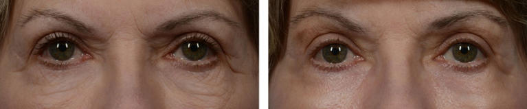 Laser Resurfacing Eye Area Before and After