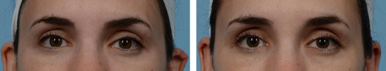 Eye Surgery Otoplasty Before and After