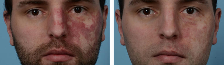 VBeam Laser Therapy Port Wine Stain Before and After