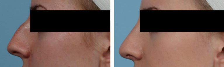 Nose Job Rhinoplasty Before and After