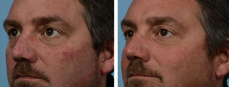 VBeam Laser Therapy Before and After