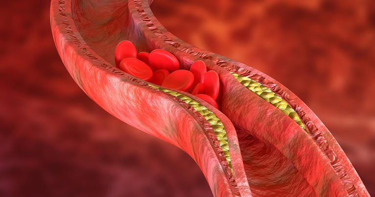 bad cholesterol in artery