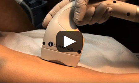 Laser Hair Removal Video